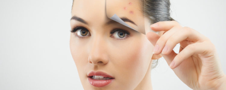 Acne Myths Part 1